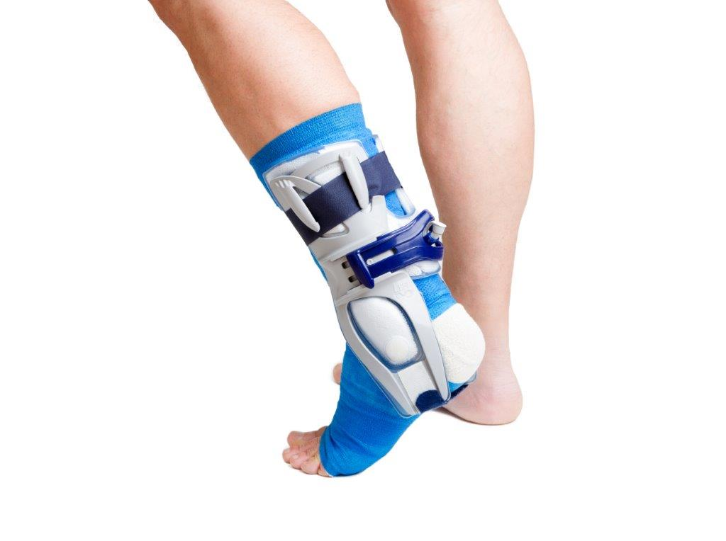 proposed rule could impact payment requirements for prosthetics